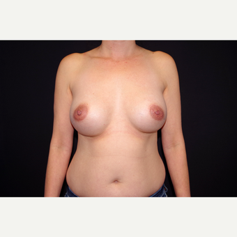 35-44 year old woman treated with Breast Implant Revision before 2998876