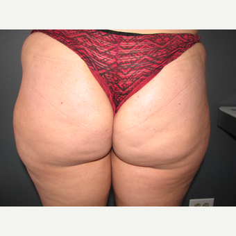 25-34 year old woman treated with Brazilian Butt Lift before 3686143
