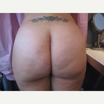 25-34 year old woman treated with Brazilian Butt Lift after 3686143