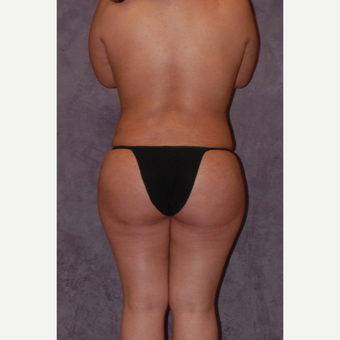 18-24 year old woman treated with Butt Augmentation