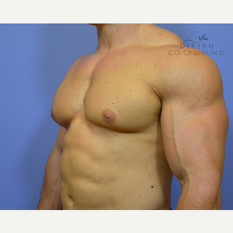25-34 year old man treated with Male Breast Reduction after 3421522