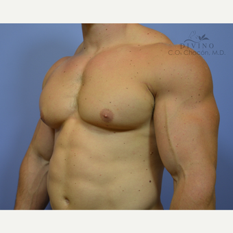 25-34 year old man treated with Male Breast Reduction before 3421522