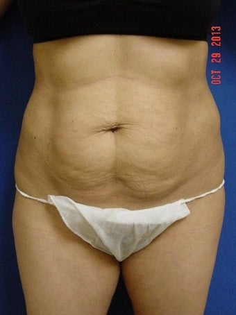 25-34 year old woman treated for Tummy Tuck before 1534953