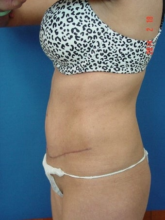 25-34 year old woman treated for Tummy Tuck 1534953
