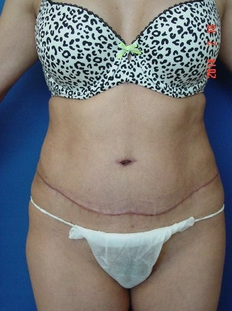 25-34 year old woman treated for Tummy Tuck after 1534953