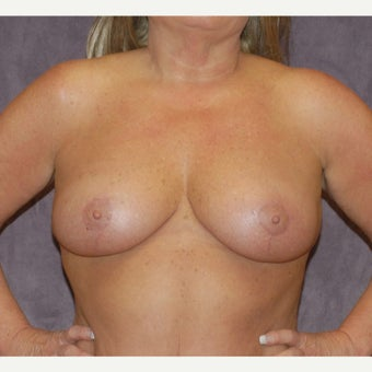 breast lift after 2076066
