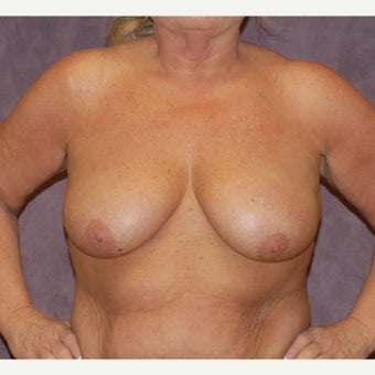 breast lift before 2076066