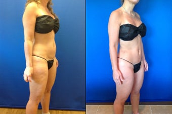 46 year old female for improvement of body contour 1416209