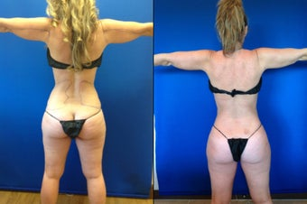 46 year old female for improvement of body contour