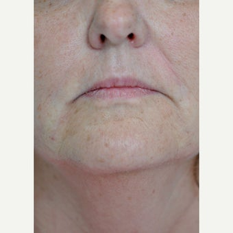 55-64 year old woman treated with Juvederm after 1579419