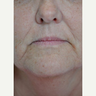 55-64 year old woman treated with Juvederm before 1579419
