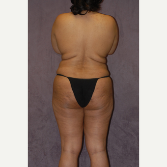 35-44 year old woman treated with Butt Augmentation