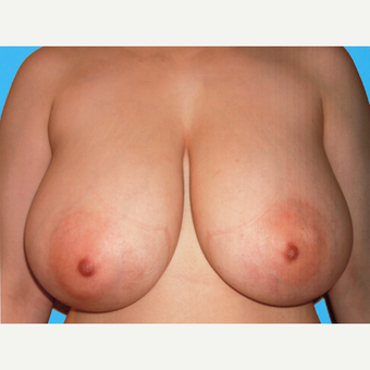 Breast Reduction before 3810062