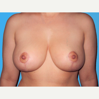 Breast Reduction after 3810062