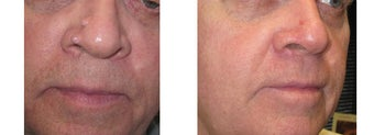 Mole Removal photos before 951893