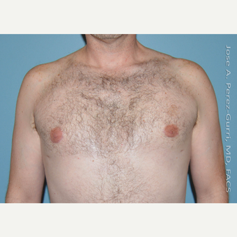 35-44 year old man treated with Male Breast Reduction after 3060167