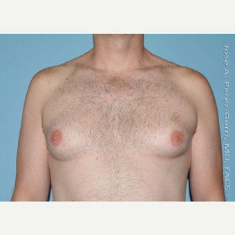 35-44 year old man treated with Male Breast Reduction before 3060167