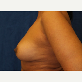 Fat Transfer to Breast (side view L)