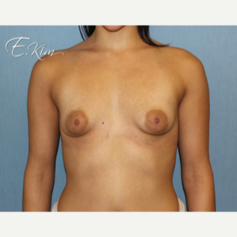 25-34 year old woman treated with Breast Lift with Implants before 3102592