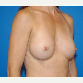 Breast Augmentation after 3206513