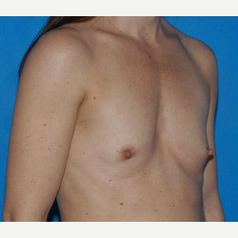 Breast Augmentation before 3206513