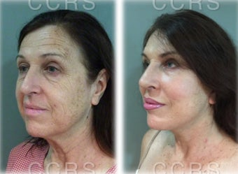 57 year old woman treated with SMAS Facelift before 3031518
