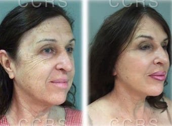 57 year old woman treated with SMAS Facelift after 3031518