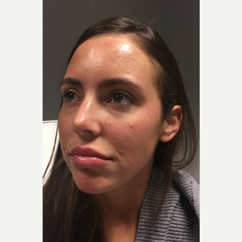 25-34 year old woman treated with Restylane before 3804085