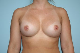 Breast Augmentation with Allergan 410 Implants after 1084100