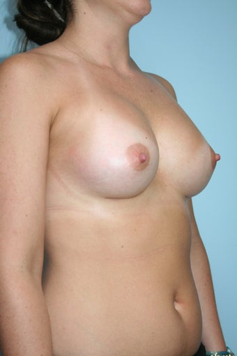 Breast Augmentation with Allergan 410 Implants 1084100