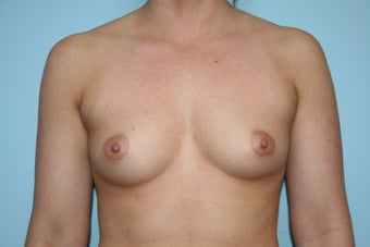 Breast Augmentation with Allergan 410 Implants before 1084100