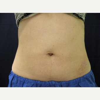 35-44 year old woman treated with CoolSculpting after 3680337