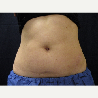 35-44 year old woman treated with CoolSculpting before 3680337