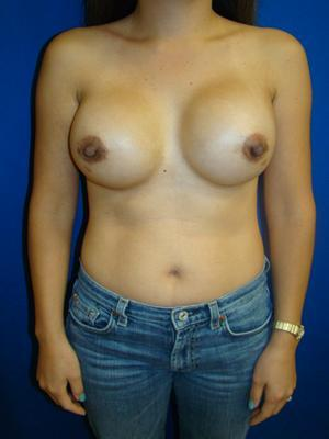 Allograft (Alloderm), Breast Augmentation, Breast Enhancement, Revision Breast Surgery before 1349038
