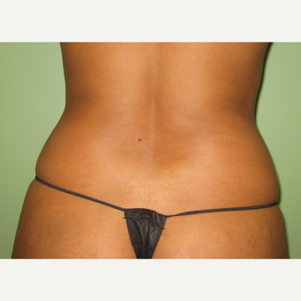 35-44 year old woman treated with Liposuction before 3241995