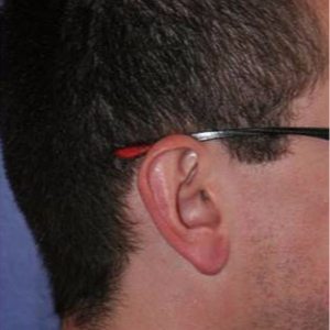 Ear Lobe Surgery after 3710618