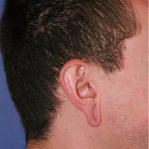 Ear Lobe Surgery before 3710618
