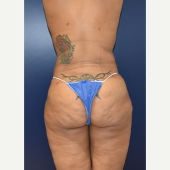 25-34 year old woman treated with Butt Augmentation after 3734075