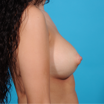 25-34 year old woman treated with Breast Augmentation after 3810895