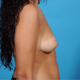 25-34 year old woman treated with Breast Augmentation before 3810895