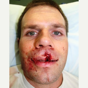 25-34 year old man status post accident with resultant complex lip laceration before 1780552