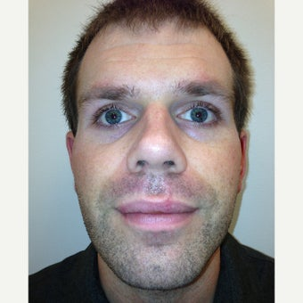 25-34 year old man status post accident with resultant complex lip laceration after 1780552