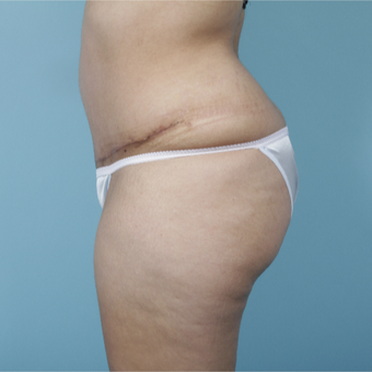 25-34 year old woman treated with Tummy Tuck after 3729936