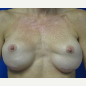 Breast Implant Revision before 3168573