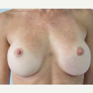 Breast Implant Revision after 3168573