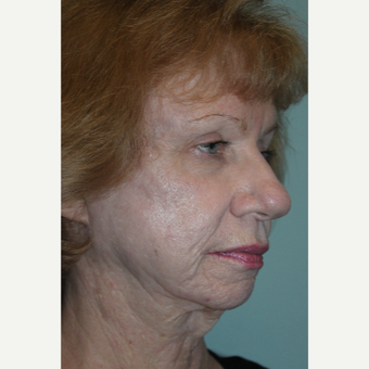 55-64 year old woman treated with Laser Resurfacing before 3657591