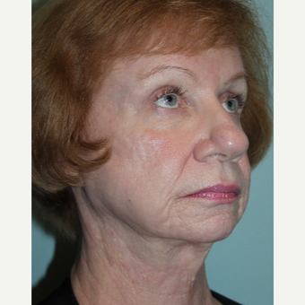 55-64 year old woman treated with Laser Resurfacing after 3657591