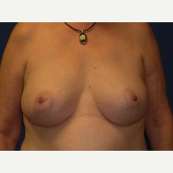 25-34 year old woman treated with Breast Augmentation after 3220084