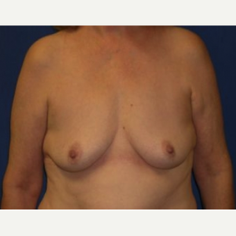 25-34 year old woman treated with Breast Augmentation before 3220084