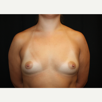 25-34 year old woman treated with Breast Augmentation before 2930007